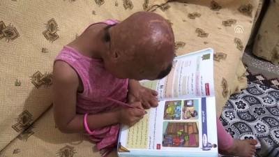 7 yaşındaki Evin'in geçirdiği 93 ameliyat savaşın izlerini silemedi - BATMAN